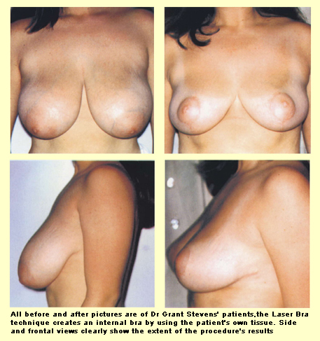 Before and After Photos - Breast Lift - Dr Goldman